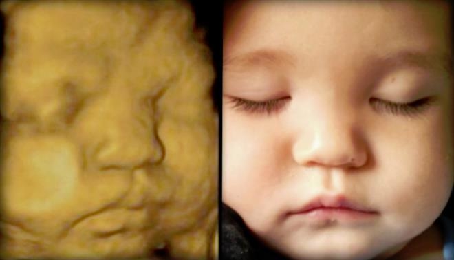 ultrasom do bebê - Pikuruxo